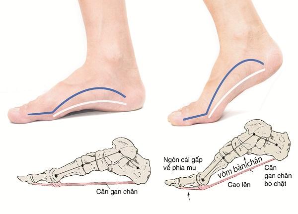 Di chuyển, vận động nặng quá nhiều làm tăng cảm giác đau gót chân